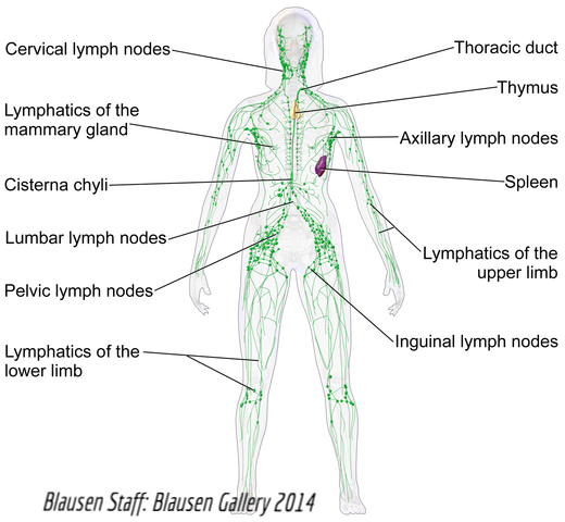 Management: Lymphatic Malformations and Lymphedema - K-T